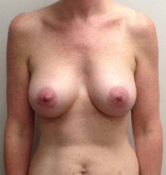 39 Year Old Female Gummy Bear Sientra Breast Implants after 1349084