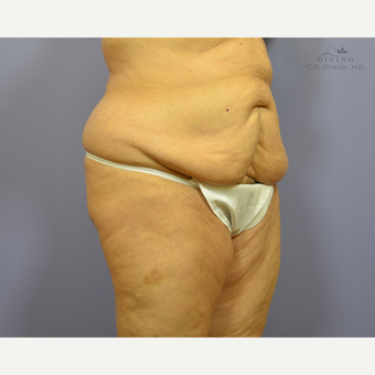 65-74 year old woman treated with Panniculectomy before 3421666