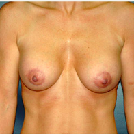 39 year old woman treated with Breast Lift with Implants after 3665933