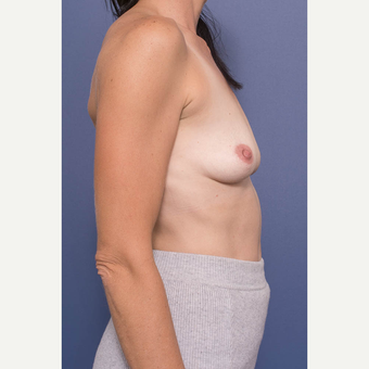 35-44 year old woman treated with Breast Augmentation before 3734958