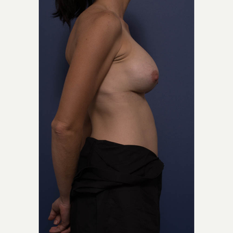35-44 year old woman treated with Breast Augmentation after 3734958