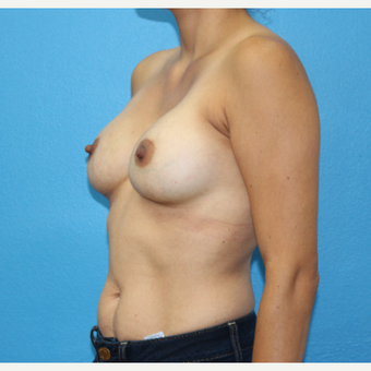 25-34 year old woman treated with Breast Augmentation after 3091032