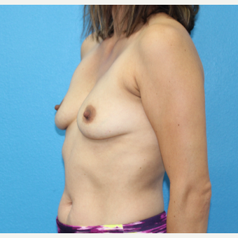 25-34 year old woman treated with Breast Augmentation before 3091032
