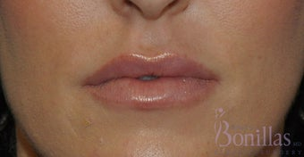 32 y/o female desired fuller lips with filler. after 1137124