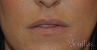 32 y/o female desired fuller lips with filler. before 1137124
