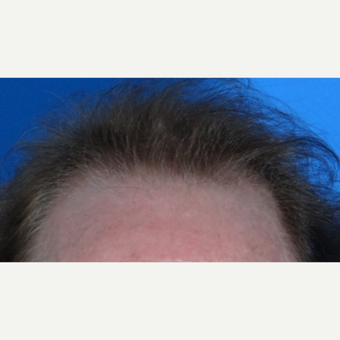 45-54 year old man treated with Hair Transplant before 3065577