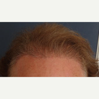45-54 year old man treated with Hair Transplant after 3065577