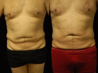 65 y/o Male SmartLipoTriplex of Abdomen, Waist and Flanks before 1014459