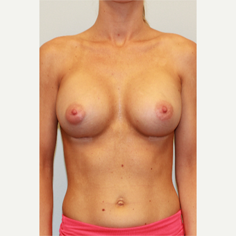 25-34 year old woman treated with Breast Implants after 3027314