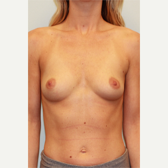 25-34 year old woman treated with Breast Implants before 3027314