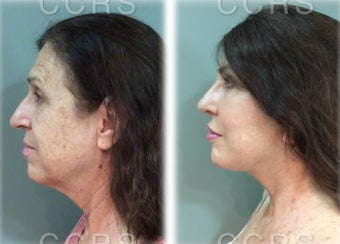 57 year old woman treated with SMAS Facelift after 3031525