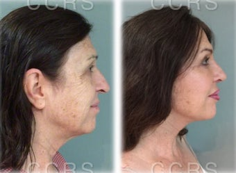 57 year old woman treated with SMAS Facelift before 3031525