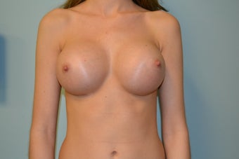 24 year Old Female Breast Augmentation after 1455171