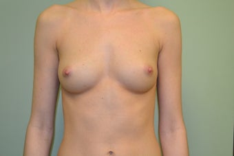 24 year Old Female Breast Augmentation before 1455171