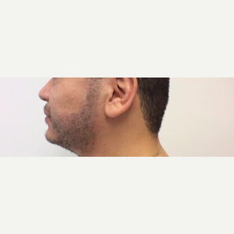 25-34 year old man treated with Hair Transplant after 3816317