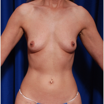 35-44 year old woman treated with Breast Fat Transfer and implants before 2854249