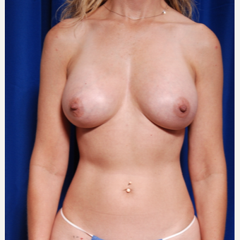 35-44 year old woman treated with Breast Fat Transfer and implants after 2854249