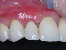 Gum Graft after 515422