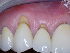 Gum Graft before 515422