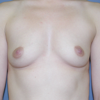 34 year old woman treated with Breast Augmentation before 3042637