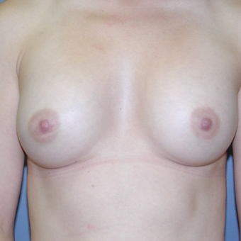 34 year old woman treated with Breast Augmentation after 3042637
