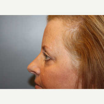 45-54 year old woman treated with Eyelid Surgery after 3708630