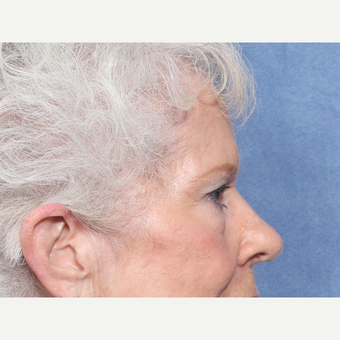 75 and up year old woman treated with Eyelid Surgery (view 2 of 2) before 3181078