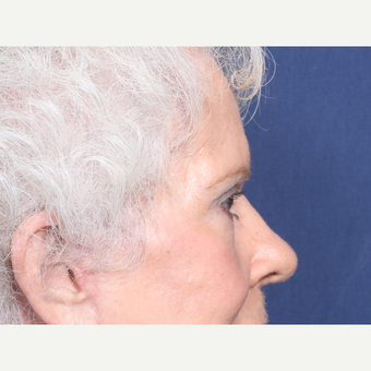 75 and up year old woman treated with Eyelid Surgery (view 2 of 2) after 3181078