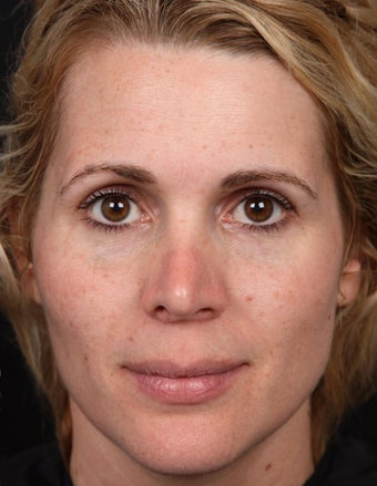 Non-Laser Resurfacing for Tone and Texture before 1357168