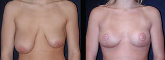 Breast Augmentation before 1143571