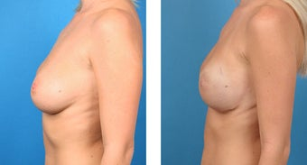 28 Year Old Woman, Cassileth One-Stage Breast Reconstruction after 1039937