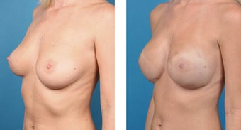 28 Year Old Woman, Cassileth One-Stage Breast Reconstruction 1039937