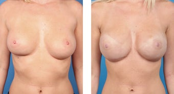 28 Year Old Woman, Cassileth One-Stage Breast Reconstruction before 1039937
