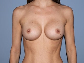 41 year old patient receives breast augmentation with form stable (gummy bear) implants after 1325439