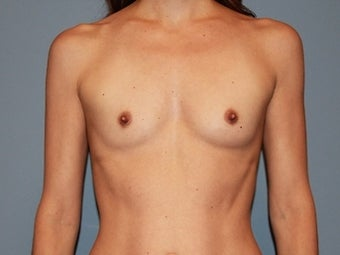 41 year old patient receives breast augmentation with form stable (gummy bear) implants before 1325439