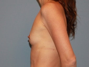 41 year old patient receives breast augmentation with form stable (gummy bear) implants 1325439