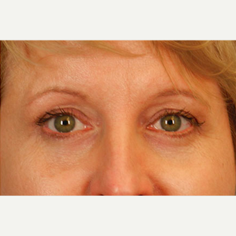 Eyelid Surgery after 3124921