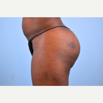 35-44 year old woman treated with Brazilian Butt Lift, 5 months post-op after 2730193