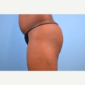35-44 year old woman treated with Brazilian Butt Lift, 5 months post-op before 2730193