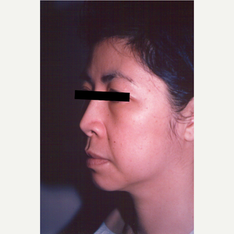 35-44 year old woman treated with Facelift before 3539058