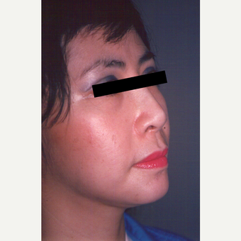 35-44 year old woman treated with Facelift after 3539058