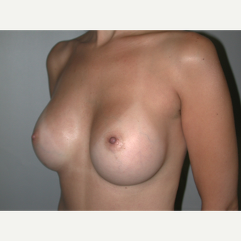 25-34 year old woman treated with Breast Implants after 3765899
