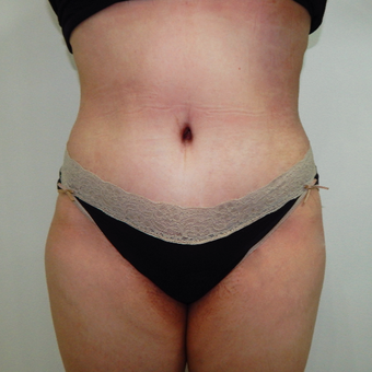35-44 year old woman treated with Tummy Tuck after 3723964