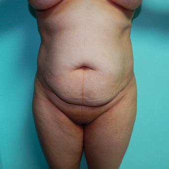 35-44 year old woman treated with Tummy Tuck before 3723964