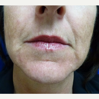 35-44 year old woman treated with Injectable Fillers before 3711160