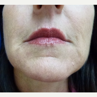 35-44 year old woman treated with Injectable Fillers after 3711160