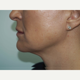 45-54 year old woman treated with Non Surgical Face Lift after 3679635