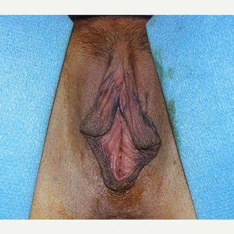 45-54 year old woman treated with Labiaplasty before 2657353