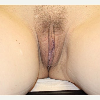 45-54 year old woman treated with Labiaplasty after 2657353