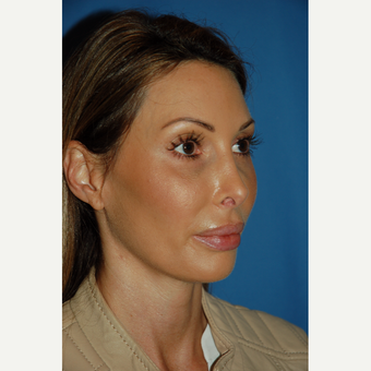 35-44 year old woman treated with Revision Rhinoplasty before 3288680
